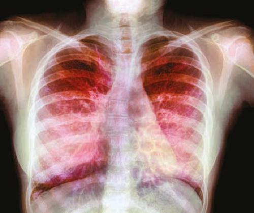 cystic_fibrosis_lead