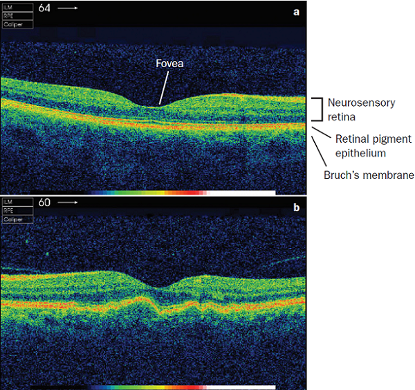 Prevention and treatment of age-related macular degeneration