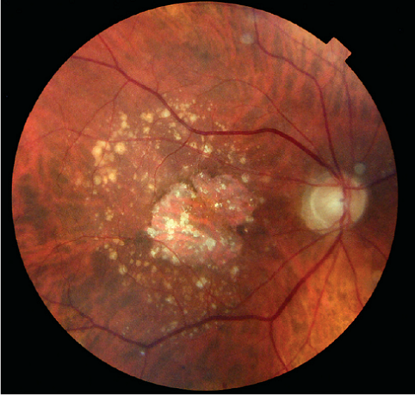 Prevention And Treatment Of Age Related Macular Degeneration