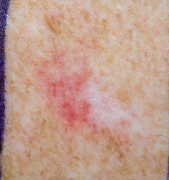 Diagnosis And Management Of Nonmelanoma Skin Cancer Prescriberprescriber