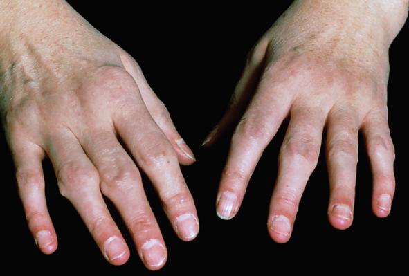 Diagnosis And Management Of Rheumatoid Arthritis