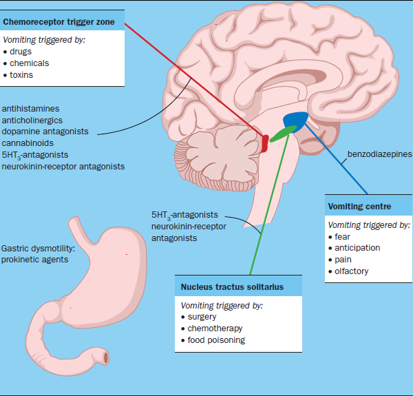 Causes and treatment of nausea and vomiting