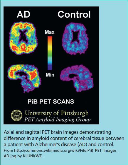 Neuroimaging in dementia: an update for the general