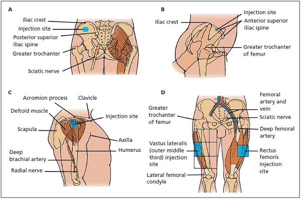 Least Painful Method Of Intramuscular Injection